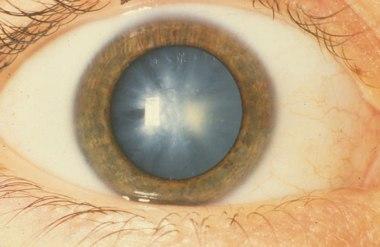 операция катаракта нижний новгород